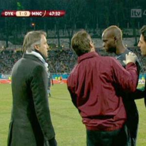 Mario Baloteli has allergic reaction in Manchester City v Dynamo Kiev