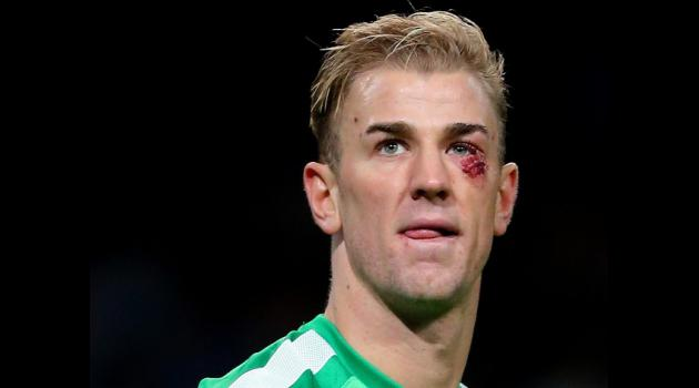 Pellegrini: Joe Hart needed rest to return to Man City best