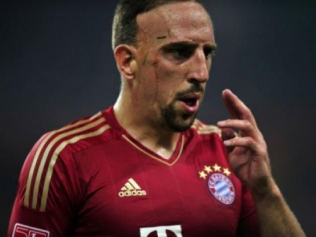 Bayern without Ribery for league opener