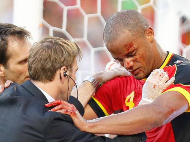 Courageous Kompany hailed by Wilmots